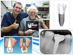 Best Implant Dentist Pasadena Texas