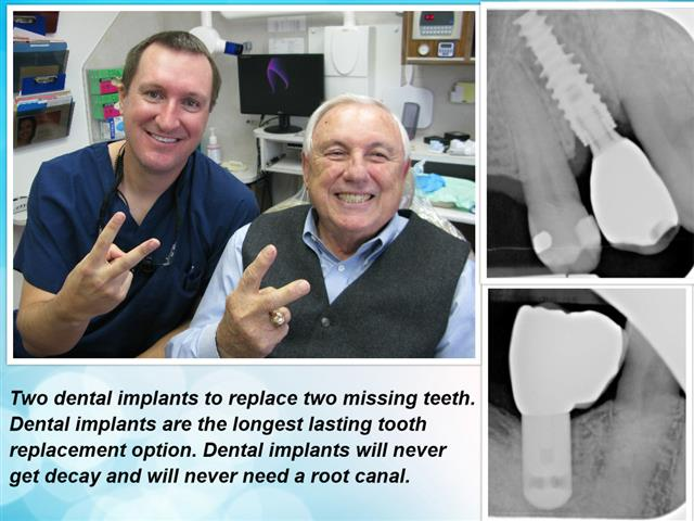 Dental Implants Replace Teeth