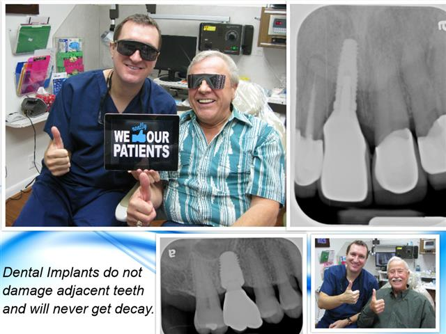 Dental Implant in Pasadena Texas