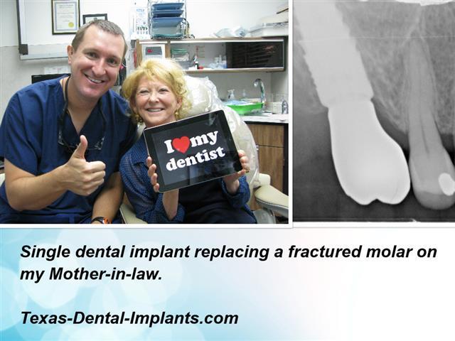 Deer Park Texas Dental Implants
