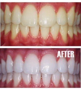 Teeth Whitening Pasadena Texas