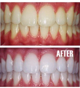 Teeth Whitening for Pasadena Texas