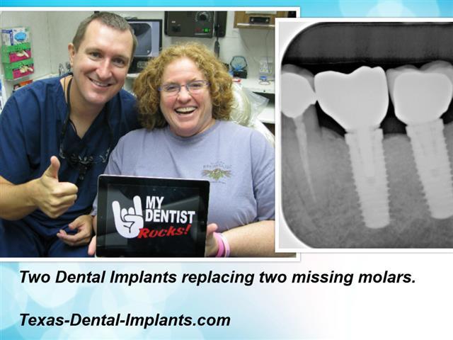 Pasadena Texas Dental Implants