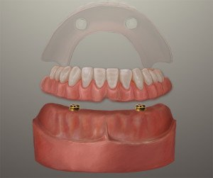 Implant Denture Pasadena Texas