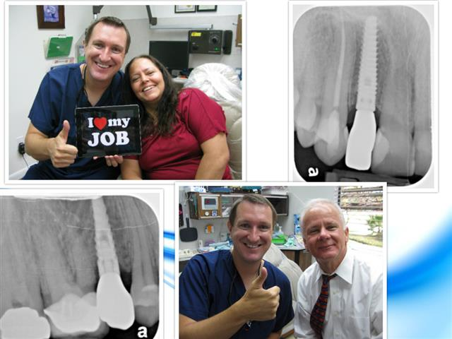 Dental Implants Pasadena Texas