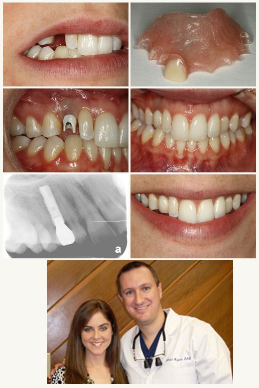 Cosmetic Dental Implant Dentist Pasadena Texas