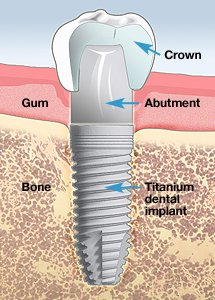 La Porte Dental Implant