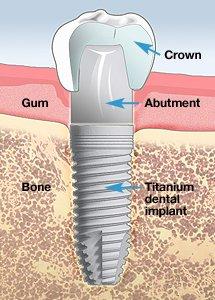 Deer Park Implant Dentist