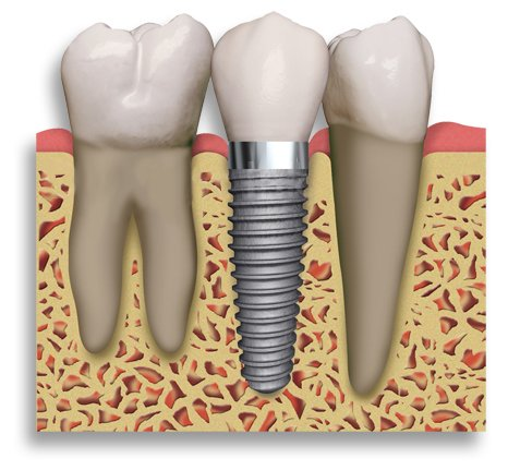 Cosmetic Dental Implant, Pasadena TX