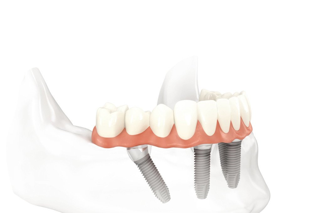 Pasadena Texas All on Four Dental Implants