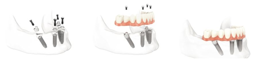 All on Four Dental Implants Pasadena Texas
