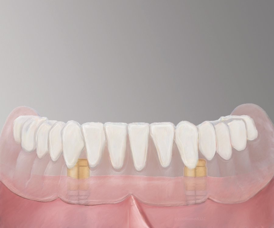 Pasadena Texas Implant Dentures