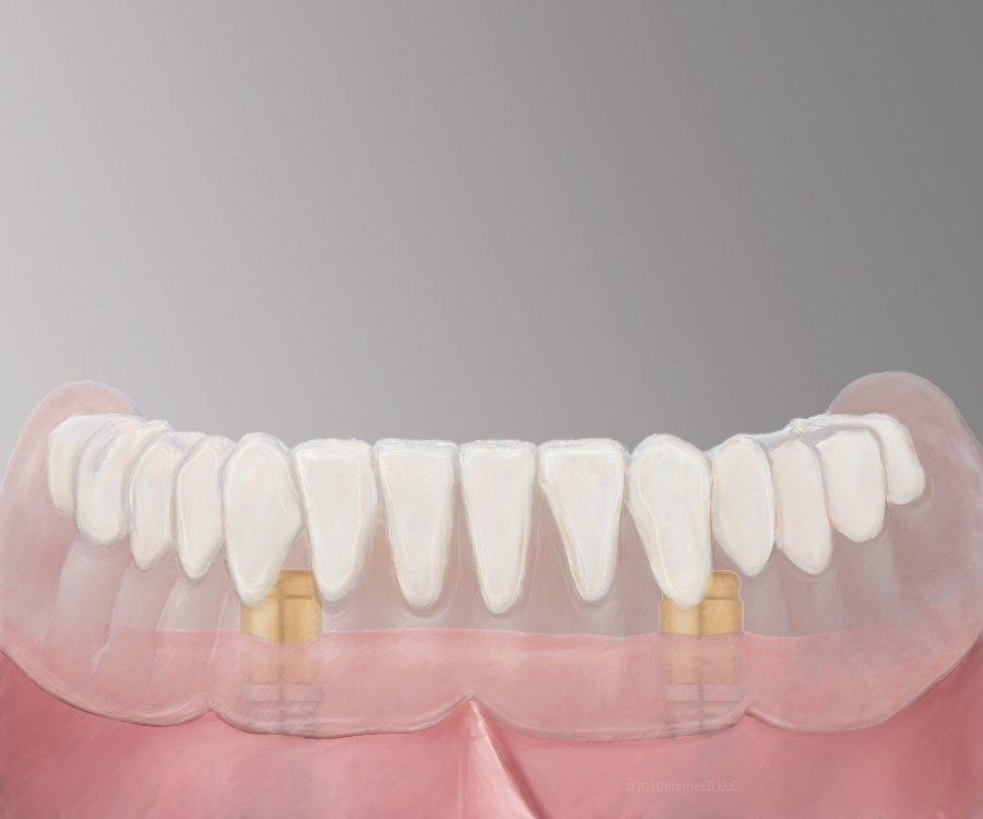 Pasadena Texas Implant Dentures