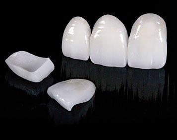 Pasadena Texas Dental Veneers