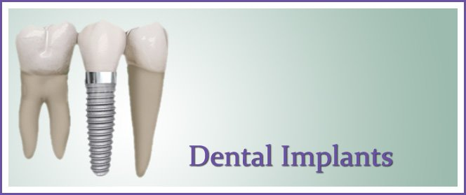 League City Dental Implant Dentist