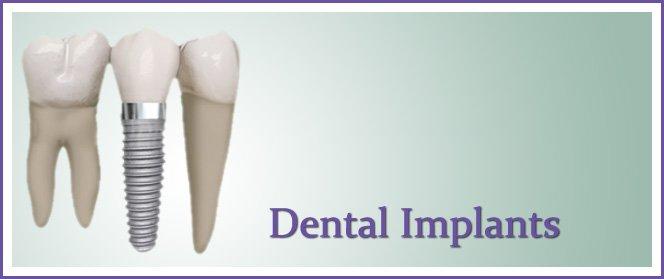 Dental Implants for Pasadena and Deer Park Texas