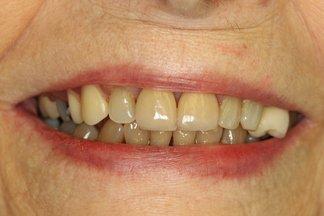 finished senior dental care