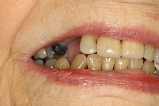 senior citizen dentist