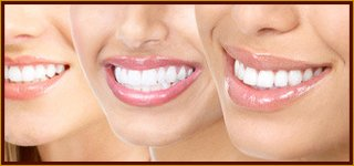 Pasadena Teeth Bleaching Dentist