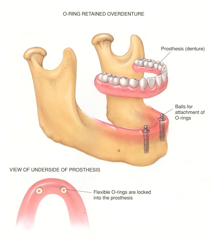 Dental Implant Denture Dentist
