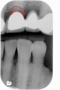 Teeth Bridges