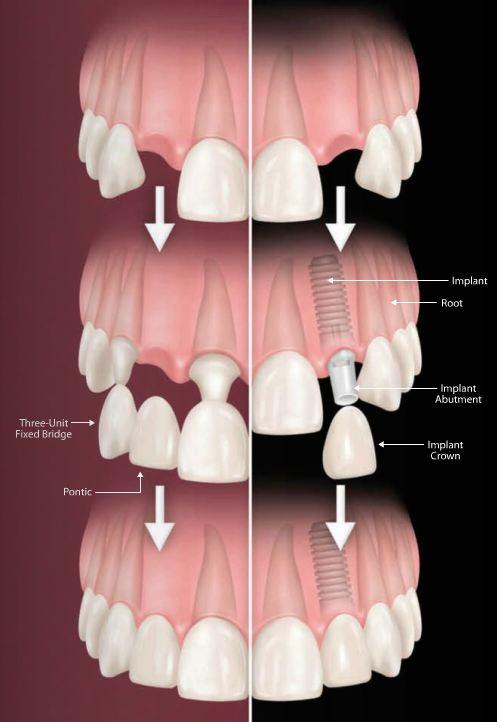 Dental Implant versus Dental Bridge