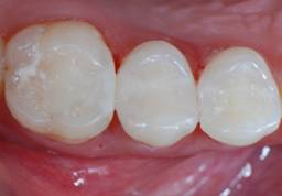 Composite Tooth Filling Pasadena Texas
