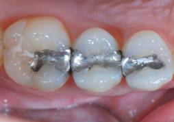 Silver Tooth Fillings Pasadena Texas