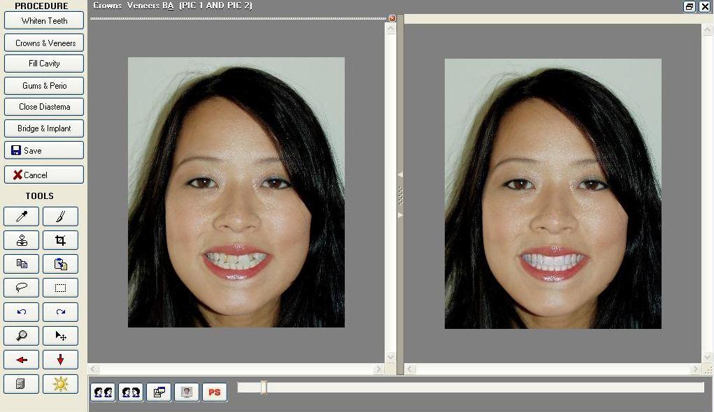 Cosmetic Dentist in Pasadena Texas