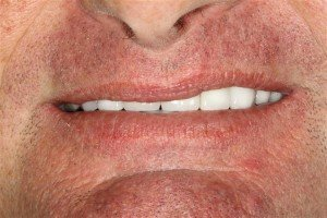 Cosmetic Dentistry Pasdena TX