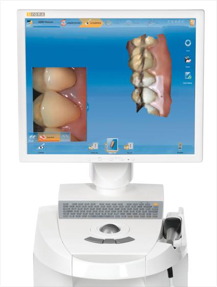 Pasadena Texas Cerec Dentist