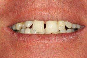 Dental Veneers Pasdaena Texas