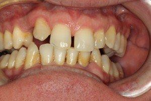Cosmetic Dentisty Pasadena Texas