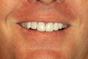 Pasadena Texas Cosmetic Dental Implants