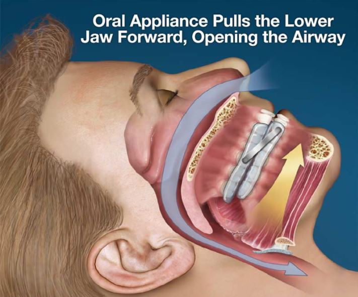 Pasadena Texas Obstructive Sleep Apnea