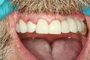 Dental Implant Bridge Deer Park Texas Dentist