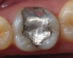 Silver Fillings Pasadena Texas