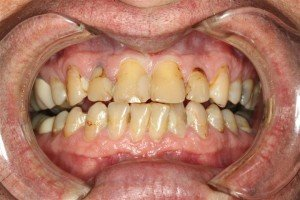 Pasadena Texas Smile Makeover