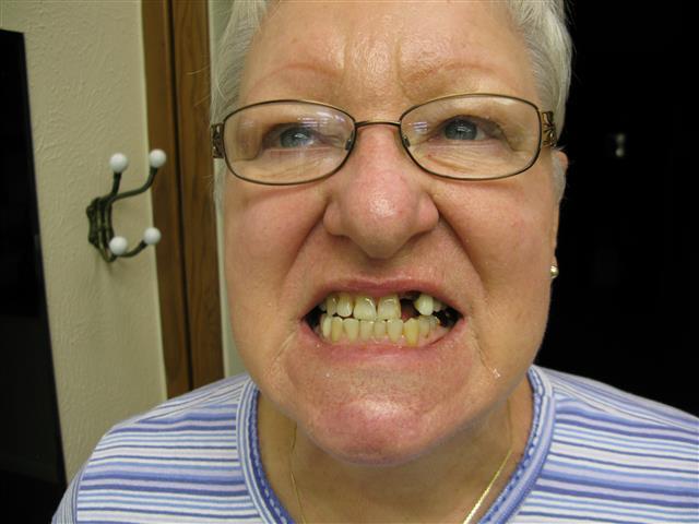 Missing Tooth Pasadena Texas