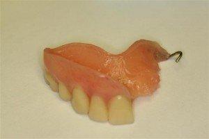 Dental Implant Bridge Pasadena Texas