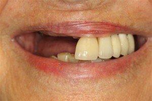 Best Dental Implant Dentist Pasadena Texas