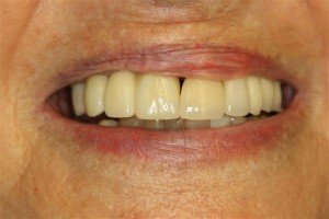 Deer Park Texas Dental Implants