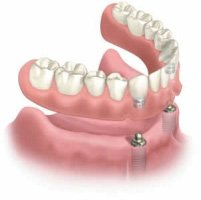 Pasadena Texas Dental Implant Denture