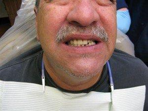 Deer Park Texas Dentist
