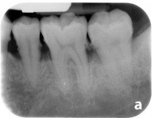 Dentist in Pasadena Texas