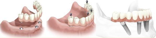 Dentures Pasadena Texas