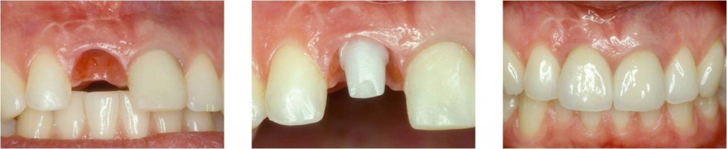Dental Implants are the best way to replace missing teeth.