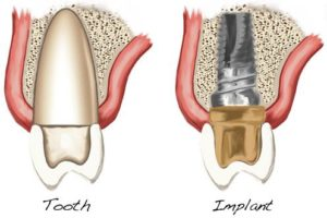 Implant and Tooth