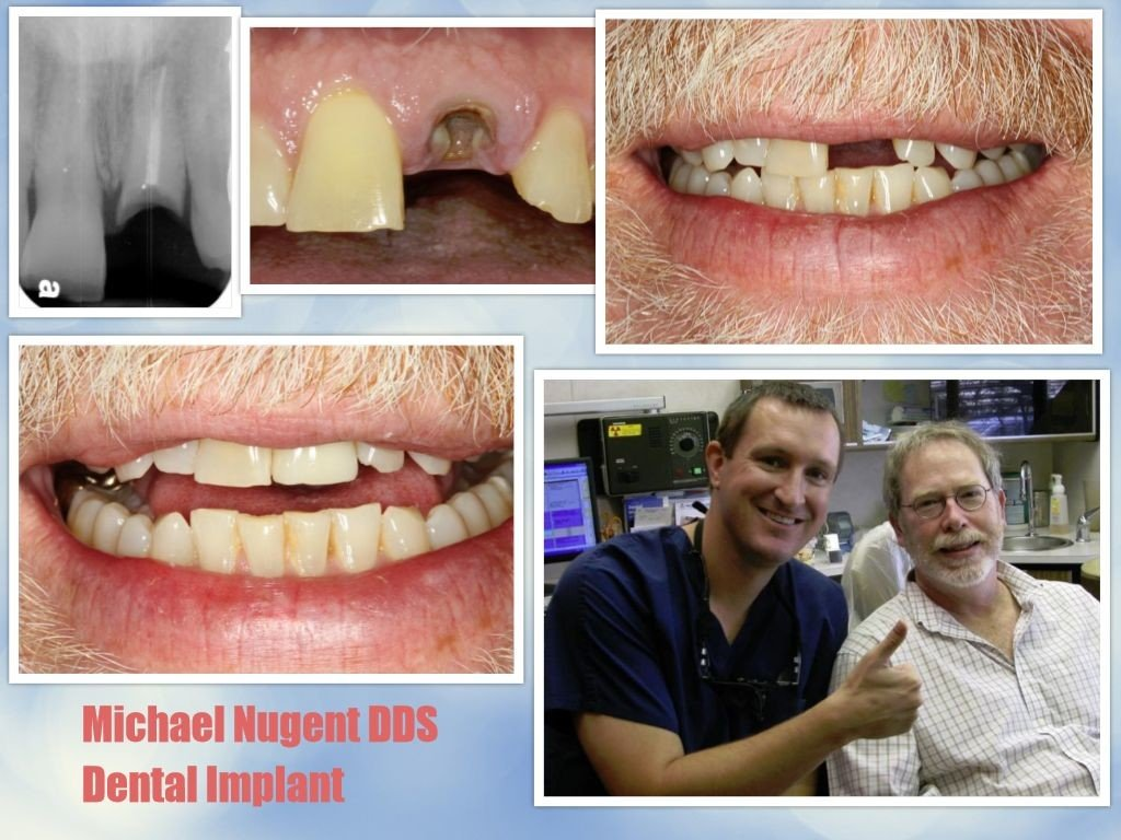 Best Dental Implants in Pasadena Texas