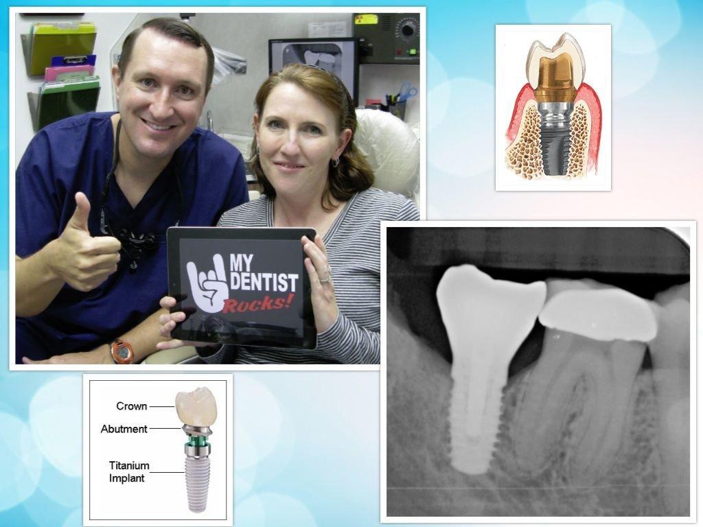 Dental Implants Deer Park Texas
